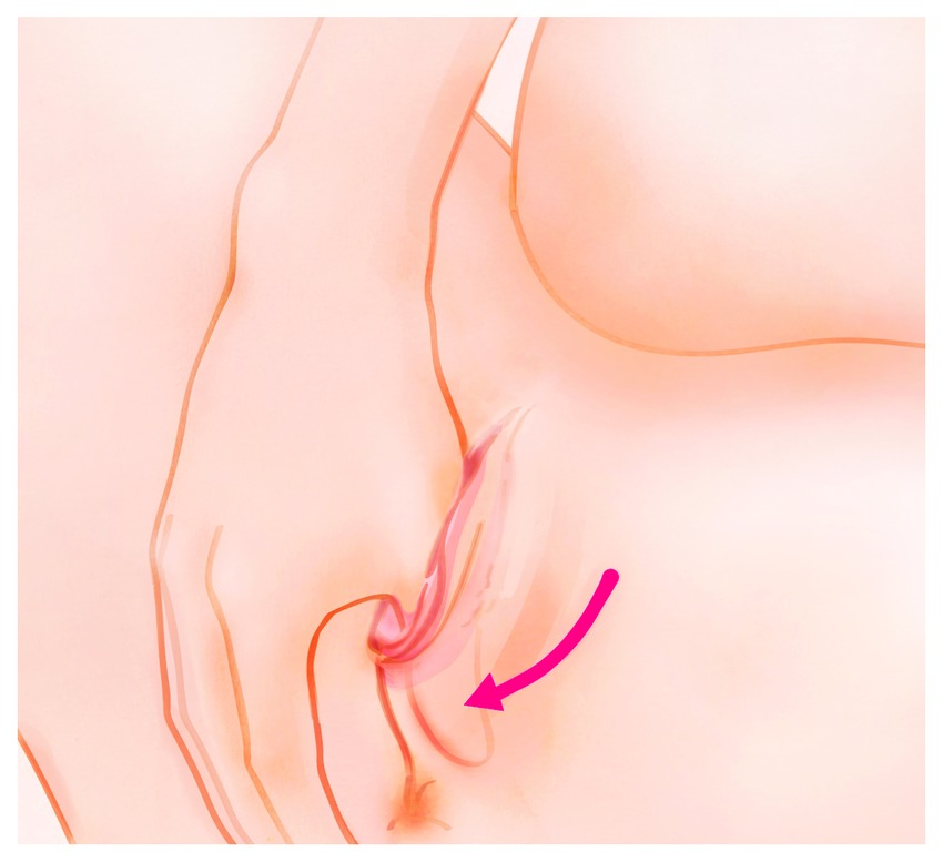 Perineal Massage Application Illustration Pulling