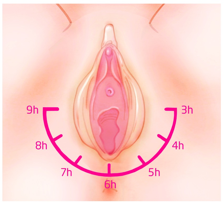 Perineal Massage Application Illustration