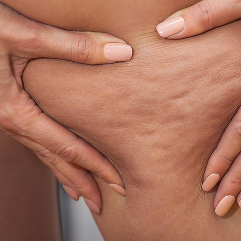 10 Facts About Cellulite